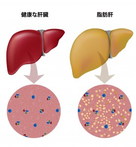 Fatty liver, eps10